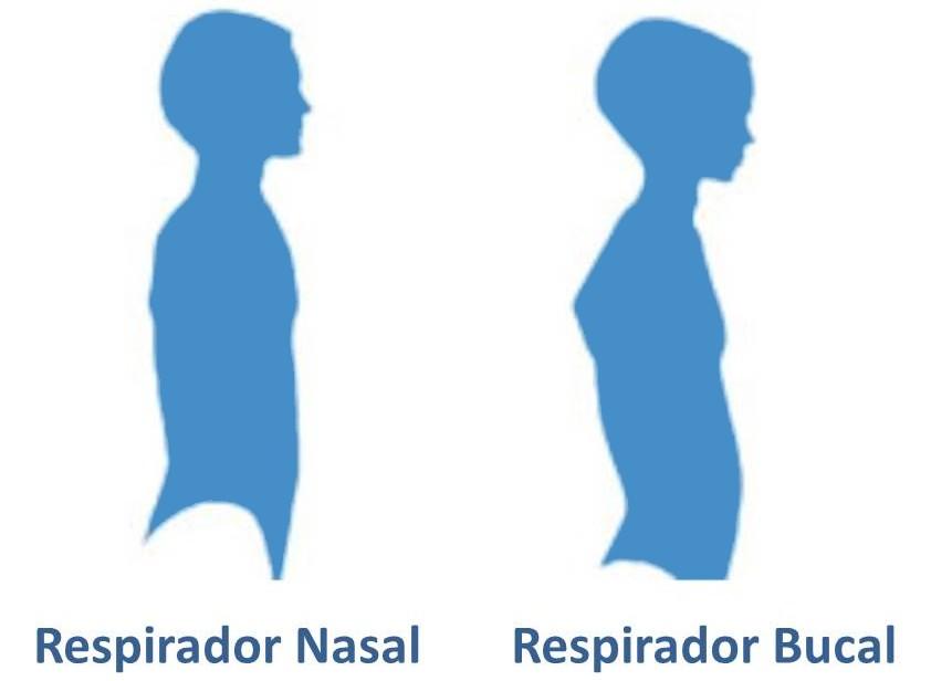 postura-respirador-bucal1